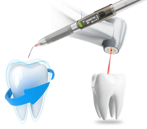 iznajmljivanje dentalnih lasera DI-EL d.o.o.